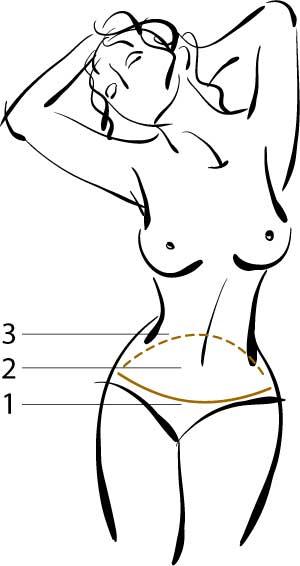 plastyka brzucha cięcia opeacja plastyczna brzucha szczecin