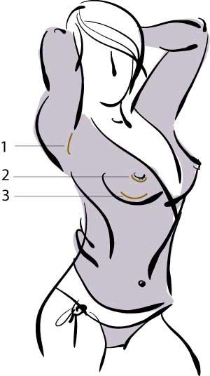 powiększanie biustu rodzaje cięć powiększanie piersi