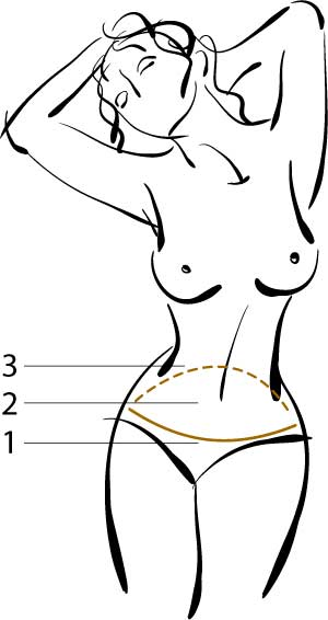 plastyka brzucha - schemat